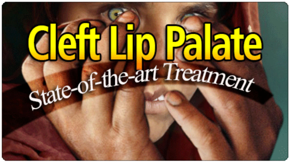 cleft lip palate state of the art treatment