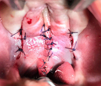 cleft palate treatment