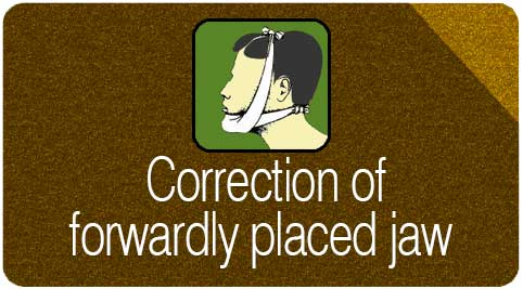 correction of forwardly placed jaw
