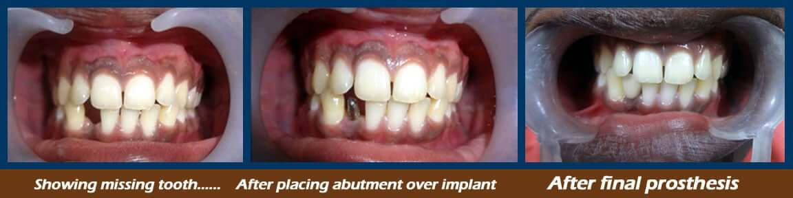 dental implants treatment in Nagercoil