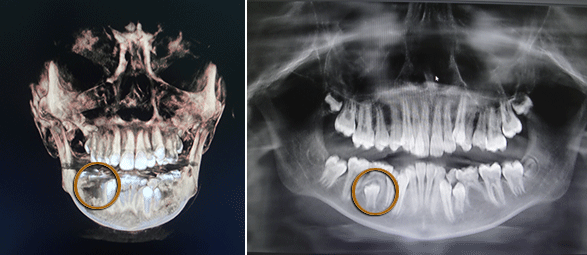 dentigerous cyst cbct