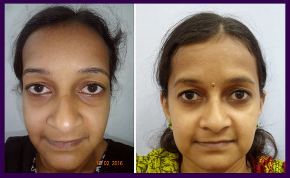 facial-aesthetic-surgery