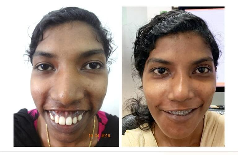 facial correction surgery in Nagercoil