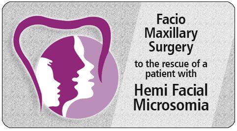 facio maxillary surgery in India