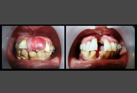 gingival growth