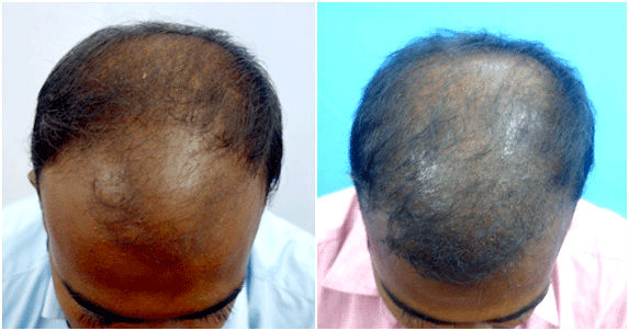 hair transplant(PRP) treatment in Tamil Nadu