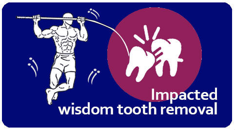 impacted teeth removal