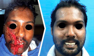 maxillofacial trauma before after