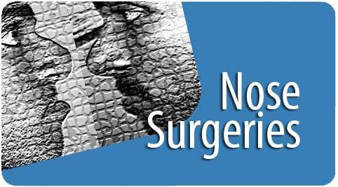 nose surgeries in India