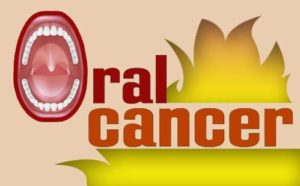 oral cancer treatment in Nagercoil