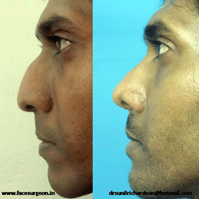 rhinoplasty surgery at Richardson's Dental and craniofacial hospital