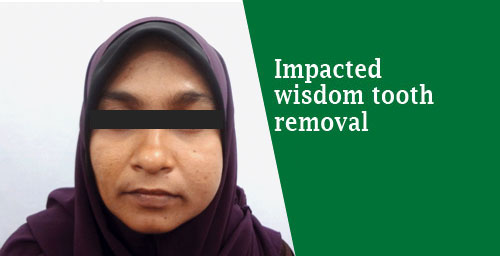 wisdom tooth removal treatment in India