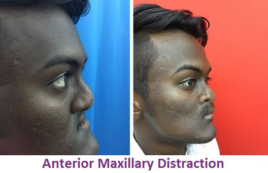 Anterior Maxillary Distraction