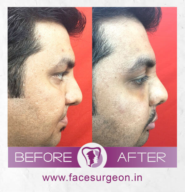 Before and After image of Lip Revision - Left Side View