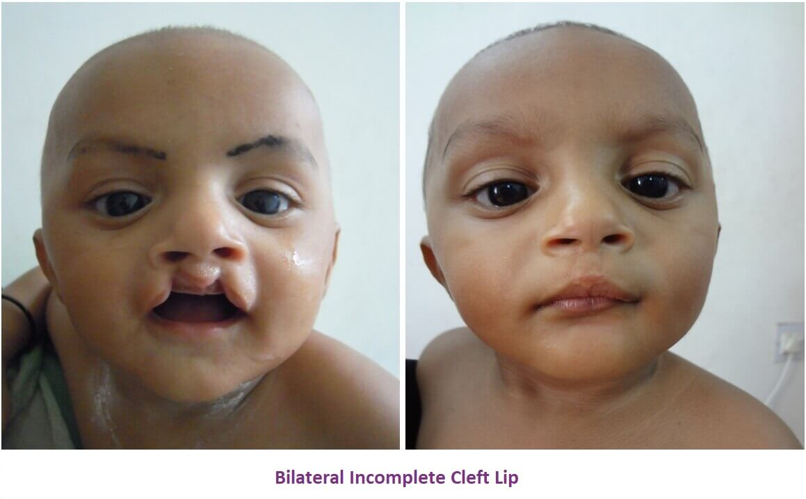 Cleft Lip Surgery