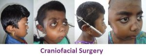 Craniofacial Treatment in Tamil Nadu