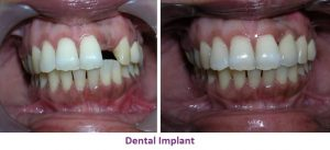 Dental Implant Treatment in Nagercoil