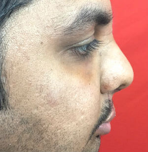 Lip Revision in Rhinoplasty After