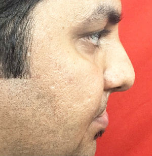 Lip Revision in Rhinoplasty Before