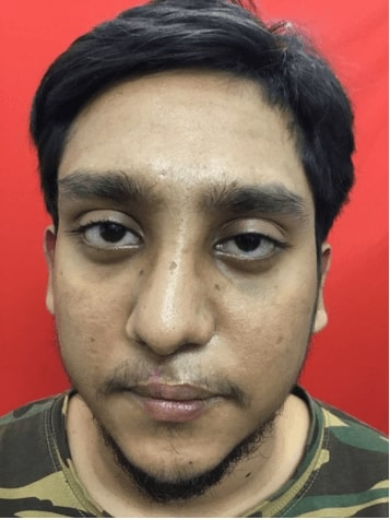 After cleft lip rhinoplasty surgery in india