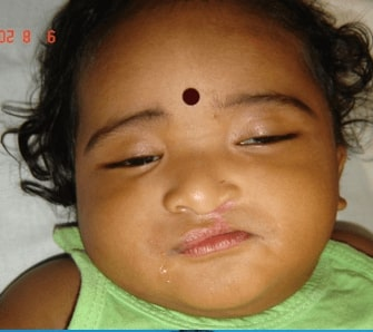 After cleft lip surgery in india