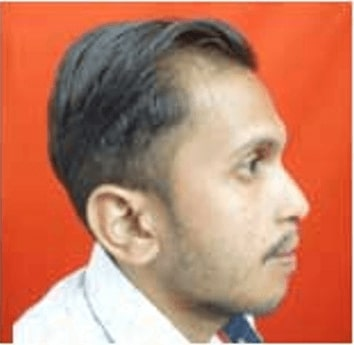 After retrognathic maxilla treatment in india
