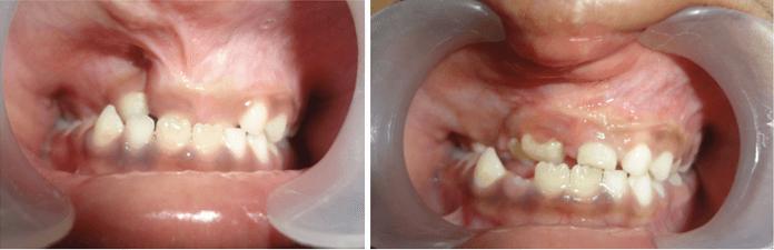 Alveolar Bone Grafting in India