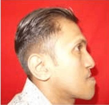 Before retrognathic maxilla treatment in india