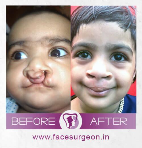 Bilateral cleft lip surgery at RIchardsons Hospital