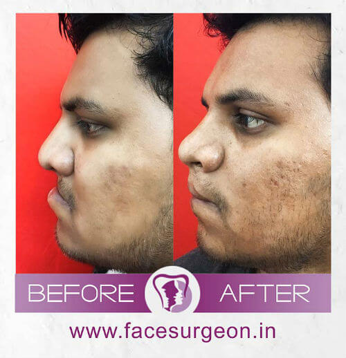 Cleft Lip Surgery at Richardons Hospital Nagercoil, India