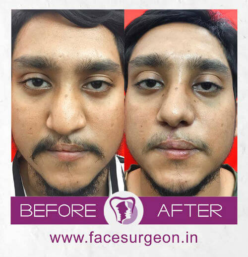Cleft Lip Surgery before and after picture in India