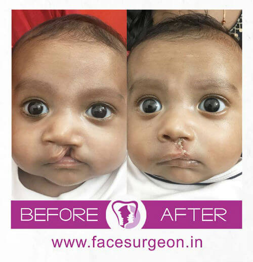 Cleft Lip Surgery for Baby in India