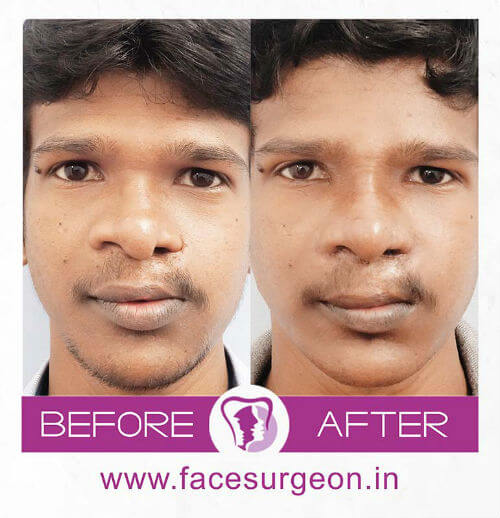 Cleft Rhinoplasty Surgery in India