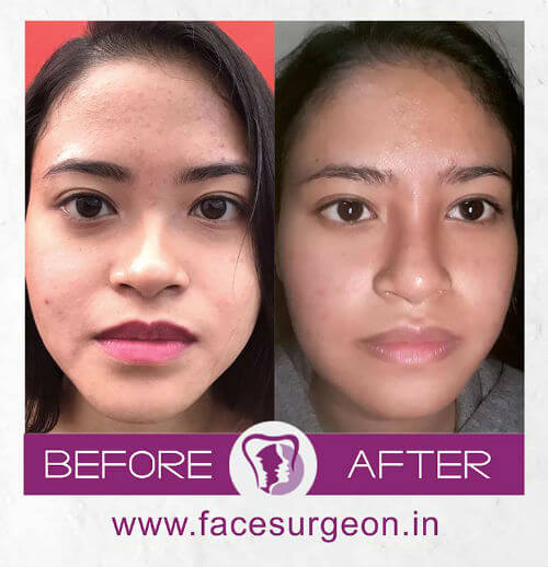 Facial Surgery at Richardsons Hospital