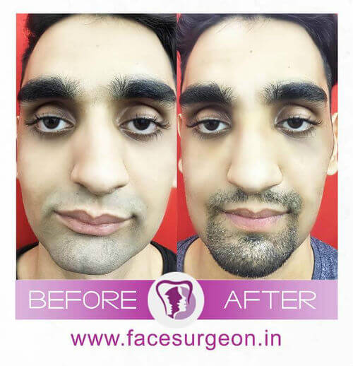Jaw Surgery Hospital in India