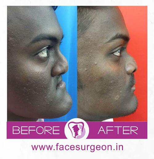 Jaw Surgery at Richardsons Craniofacial Hospital India
