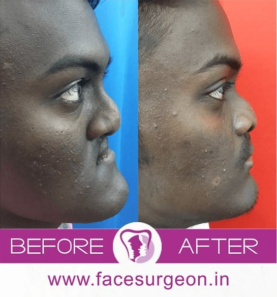 before and after retrognathic maxilla surgery india