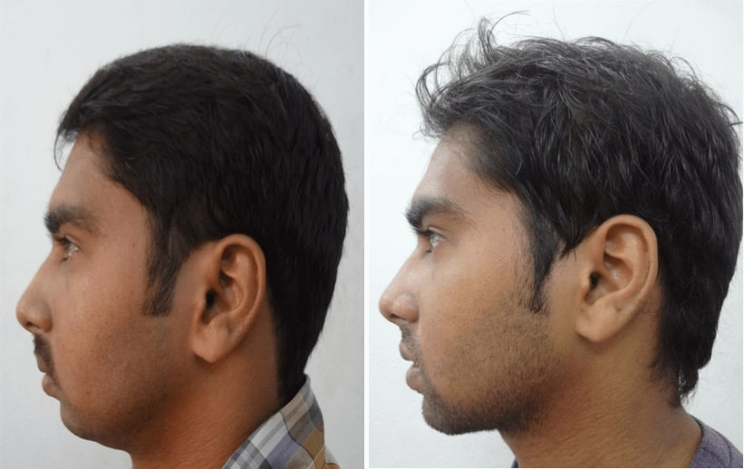 before after orthognathic surgery in india