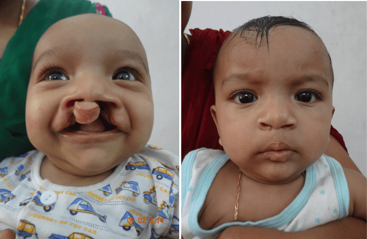 before and after cleft lip surgery in india
