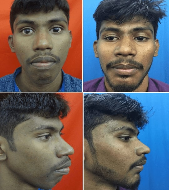 before and after jaw surgery in india