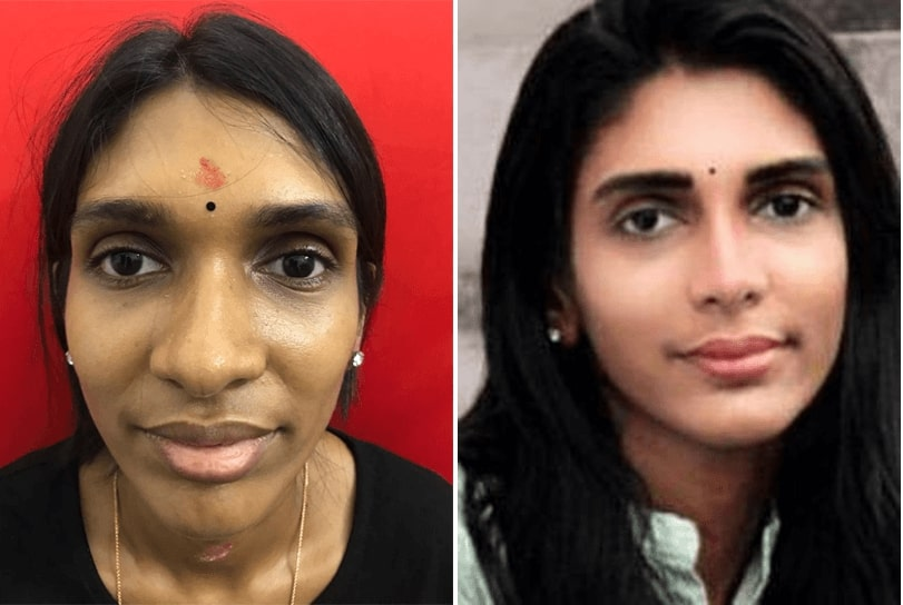before and after rhinoplasty surgeon in india
