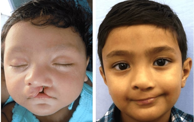 cleft lip surgery specialist in india