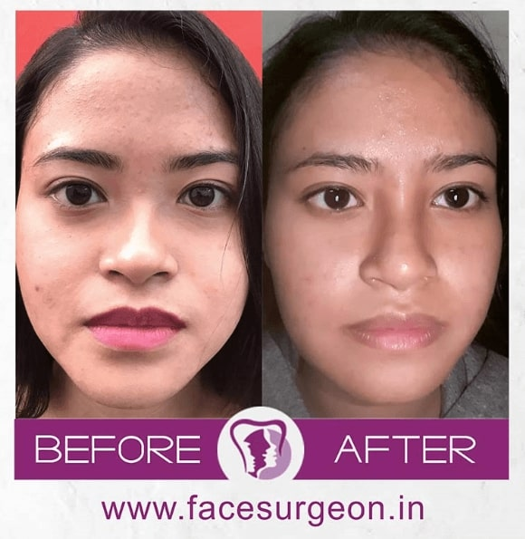 cleft rhinoplasty treatment in india