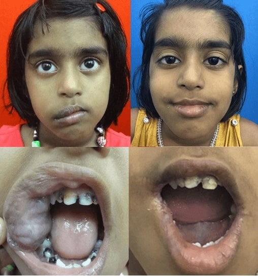 before and after hemangioma treatment in india