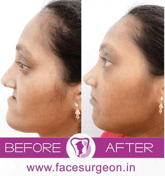 maxillofacial surgeon in india