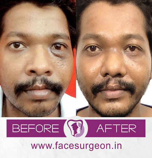 occuloplasty surgery in india