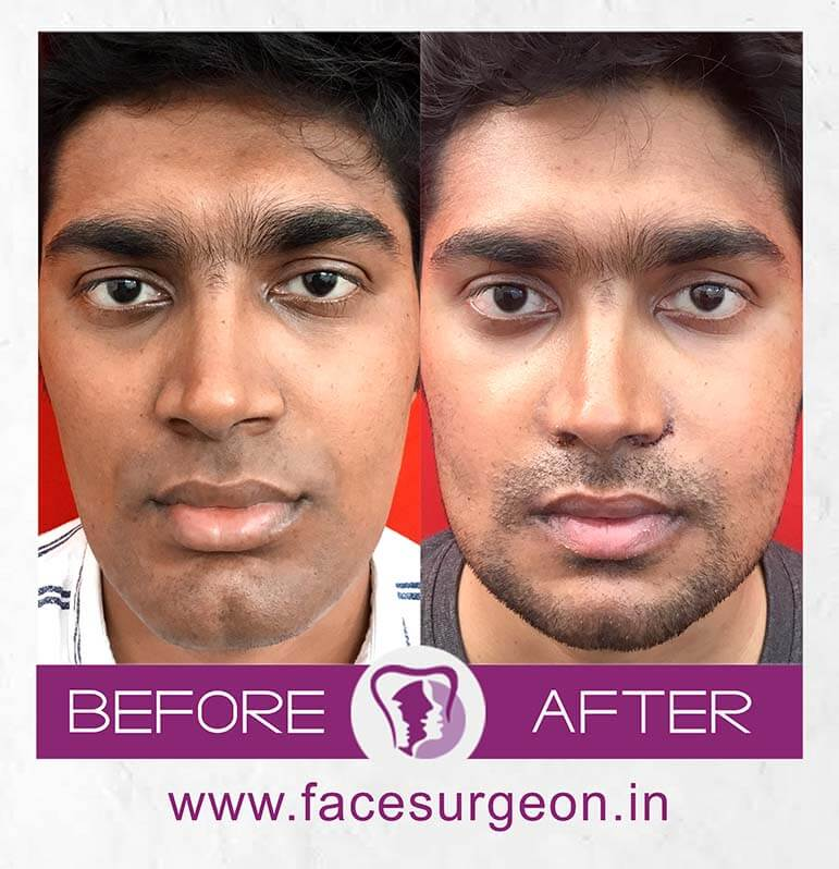orthognathic jaw surgery in india