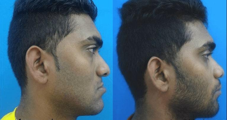 retrognathic maxilla surgery india