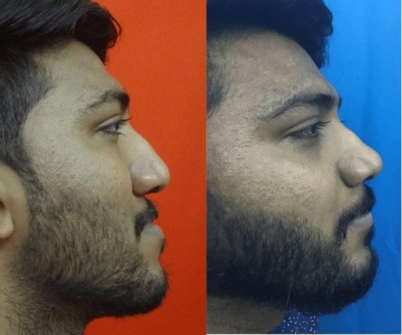 retrognathic maxilla treatment in india